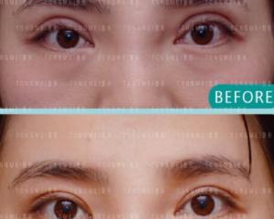 北京做双眼皮修复最好的医生是哪个?北京眼修复专家预约排行榜大全
