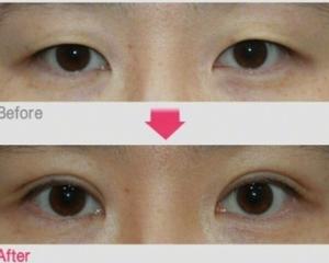 成都双眼皮修复最厉害的医生是谁?卢尚兵、车红昌、刘辅容、杨迪、高亮谁技术好?