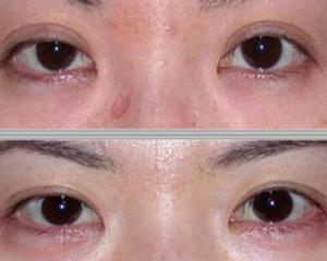 郑州修复双眼皮好的医生排名预约大全:田国静、张洪波、聂丽丽、杨小顺、杨丽、贾亮好吗?