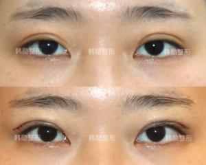 常冬青和韩勋谁修复双眼皮好?常冬青和韩勋对比谁的修复双眼皮技术好?