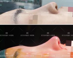 武汉鼻子修复最好的医生是谁?武汉鼻子修复最好的专家预约排行榜