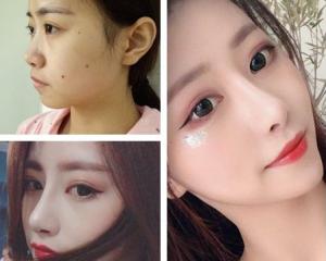 南京鼻子修复最好的医生是谁?南京鼻子修复最好的专家预约排行榜