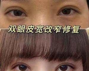 长沙双眼皮修复哪个医生做的比较好?解灿、张姣姣、刘磊、田芳斌、罗亮眼修复怎么样?