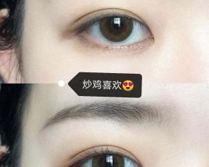 解灿和张娇娇双眼皮哪个做的好?张娇娇解灿做双眼皮技术怎么样?