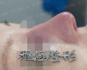 深圳高山做鼻子效果怎么样?深圳高山隆鼻技术好吗?