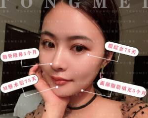 北京鼻子修复最好的医生是谁?北京鼻子修复最好的专家预约排行榜