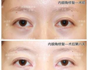 北京修复眼角厉害的医生是谁?张冰洁、吴炎秋、王世勇、刘风卓、师丽丽谁修复得好?