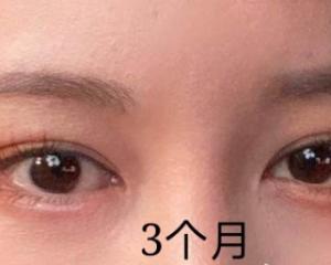 青岛刘学源双眼皮修复多少钱?青岛刘学源修复双眼皮贵吗?技术好吗?