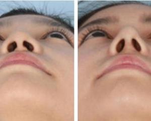 武汉鼻子整形最好的医生是哪个?武汉黄立、钟爱梅、郭能强、郭亮、邓裴做鼻子怎么样?