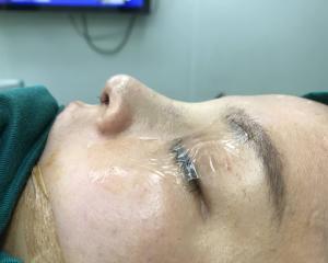 广州鼻子修复最好的医生是谁?广州鼻子修复最好的专家预约排名