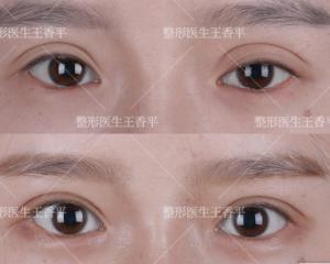 王香平做双眼皮和双眼皮修复怎么样?王香平眼修复技术简介预约