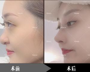 曹海峰和王旭明哪个做鼻子好?王旭明曹海峰隆鼻谁的技术好?