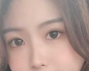 杭州整形医院割双眼皮医生哪个好?杭州眼部双眼皮预约最多的专家排行榜