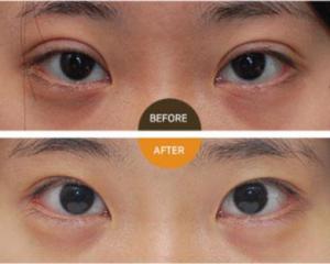 北京双眼皮修复比较好的医生有哪些?北京眼修复预约最多的专家排名