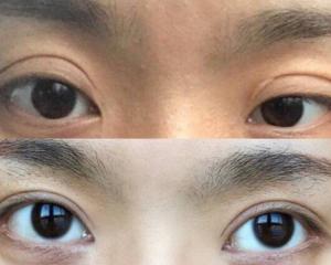 武汉陈平和王海平哪个修复双眼皮好?武汉陈平和王海平眼修复谁的技术好?