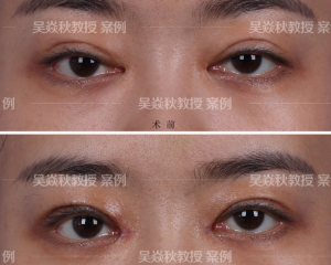 吴焱秋和刘风卓谁修复双眼皮效果好?刘风卓吴焱秋做眼修复谁更好?