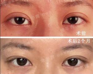 双眼皮修复韩勋对比常冬青哪个好?常冬青和韩勋的眼修复技术谁更好?