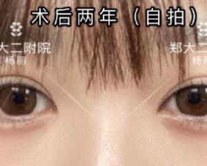 郑州杨丽和田国静哪个修复双眼皮最好?田国静杨丽双眼皮修复技术谁好?