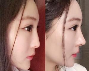 上海九院张盈帆做鼻修复怎么样?张盈帆隆鼻修复技术好吗?简介预约