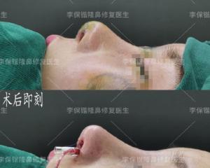 杭州鼻子修复最好的医生是谁?杭州鼻子修复最好的专家有哪些?